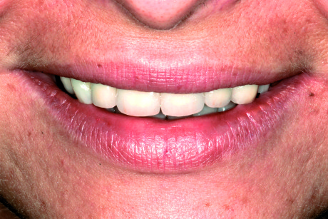 2. Caso clinico iniziale: close-up del sorriso.