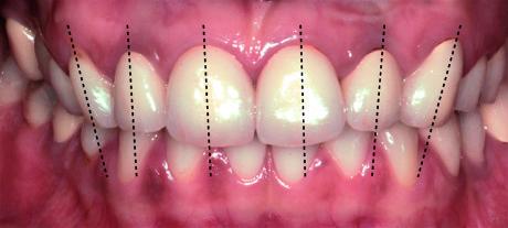 3. Caso clinico iniziale: foto intraorale con il disegno degli assi dentali.