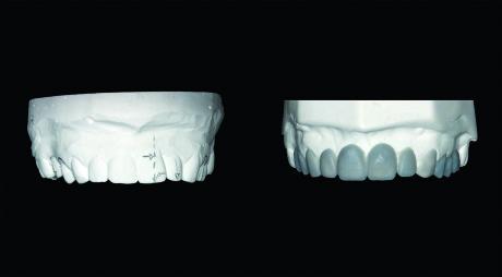 4. Modello iniziale (a sinistra) e con wax-up.