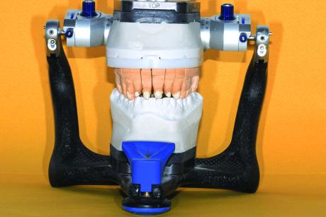 8. Il modello definitivo in articolatore.