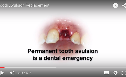 Avulsed. Permanent Tooth