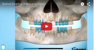 eruzione dentale disodontiasi