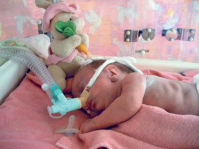 7a-7b. Università di Debrecen: unità di terapia intensiva neonatale e un piccolo paziente.