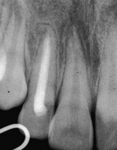 3. La radiografia a 10 mesi dall'intervento mostra l'otturazione del canale radicolare del dente 12 e la riuscita della guarigione periapicale.