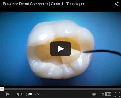 composito, nanoriempito, nanofibre posterior first class molar composite