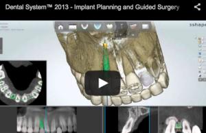 implantologia guidata chirurgia guidata