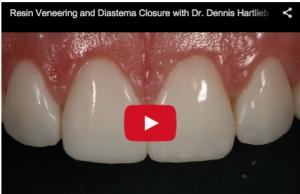 faccette in ceramica-diastema