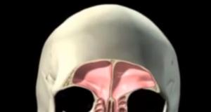 seno mascellare, patologia sinusite odontogena perforazione membrana di Schneider