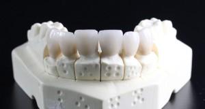 ossido di zirconio protesi corona disilicato di litio