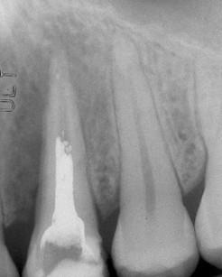 1. Radiografia del primo premolare mascellare con segni di perdita ossea peri-apicali.