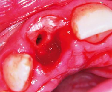 4. Sito alveolare dopo asportazione del frammento dentale distaccato.