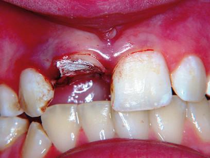 6. L'elemento 1.1 è stato trattato endodonticamente.