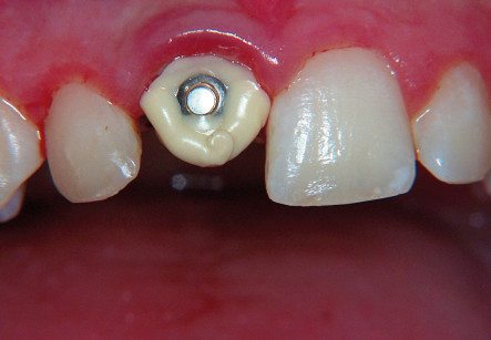 10. Ricostruzione in composito dell'elemento 1.1 per consentire l'applicazione di un bottone ortodontico.