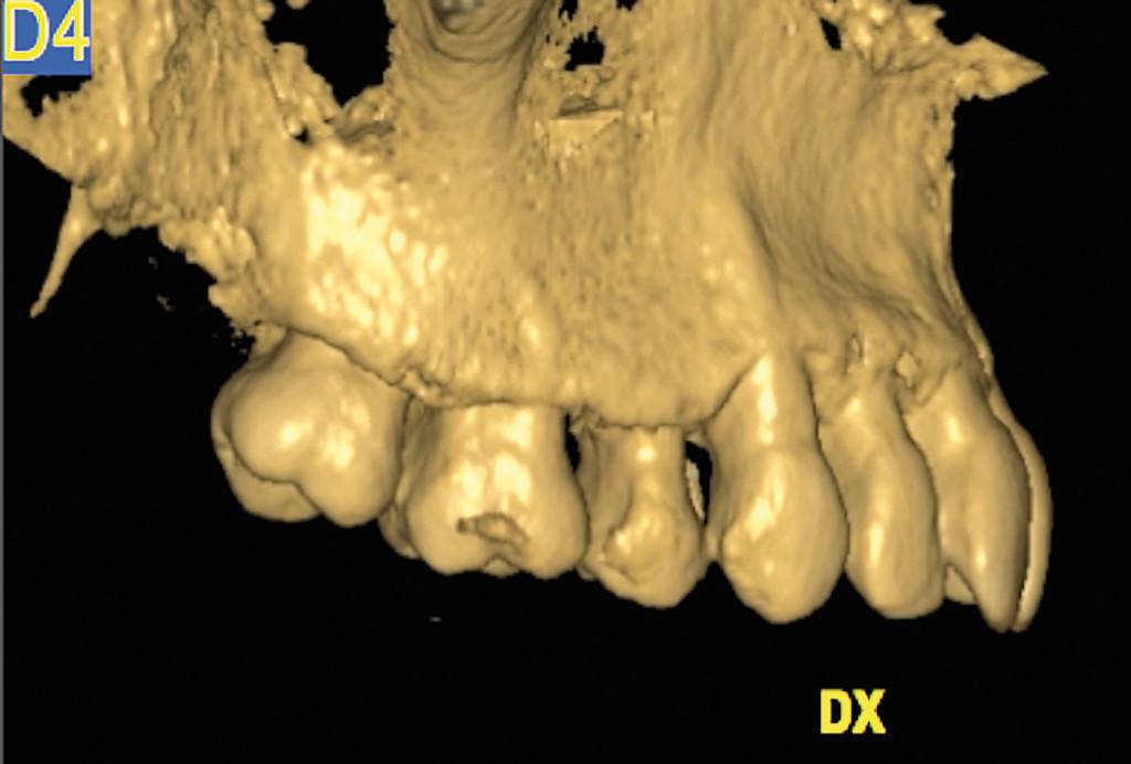 2. Intervento di corticotomia dento-alveolare. Espansione arcata mascellare; Tomografia computerizzata; proiezione sagittale, lato destro.