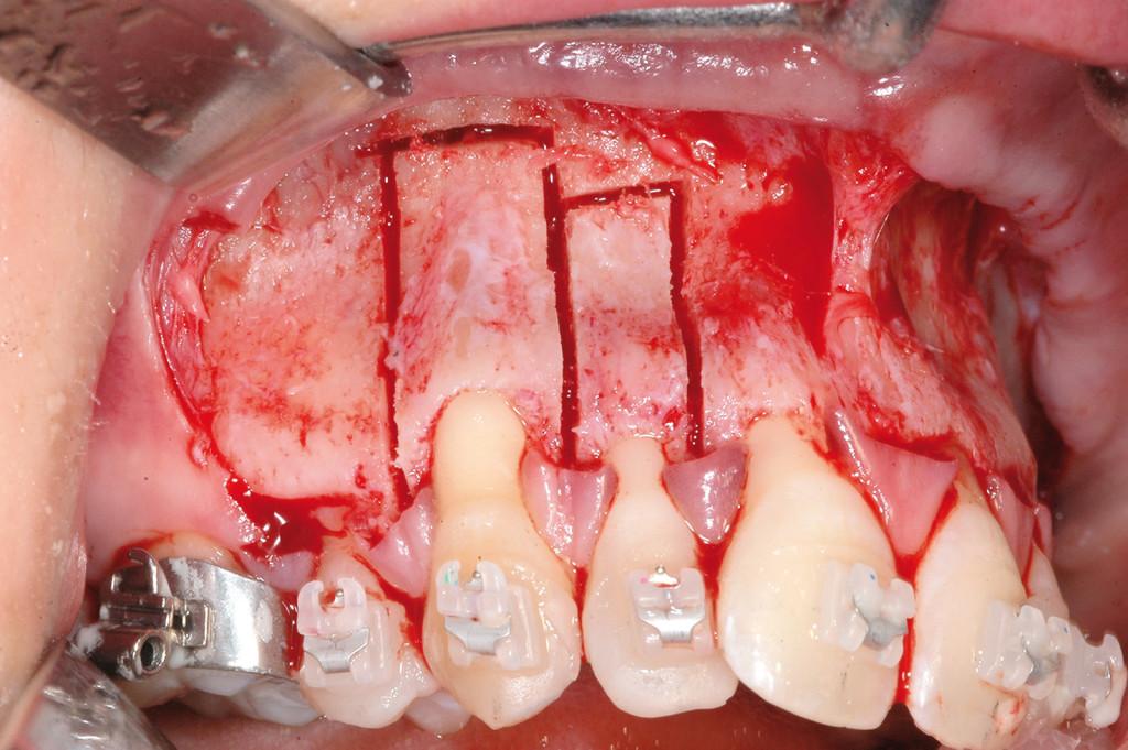 5. Intervento di corticotomia dento-alveolare. Espansione arcata mascellare; dettaglio.