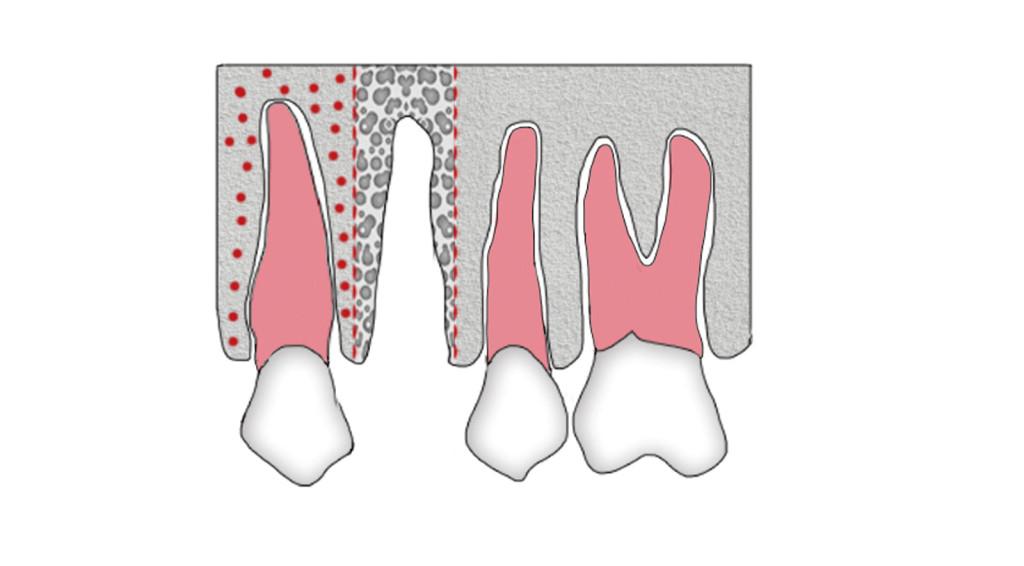 9. Rappresentazione della tecnica di distrazione osteogenica secondo la metodica di Iseri e Kisnisci.