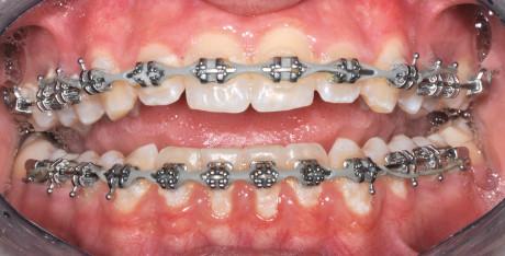 6. Accumuli di placca responsabili di gengivite in pazienti con ortodonzia fissa vestibolare.