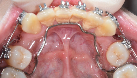 11. Depositi di tartaro in pazienti con arco linguale.