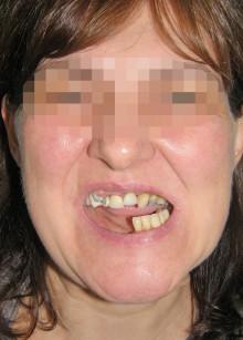 1. La paziente dopo il trauma mandibolare con grave malocclusione e deformità del terzo inferiore del volto.