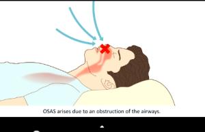 DM_il dentista moderno_patologie del sonno_odontoiatria_osas_diagnosi_sintomi