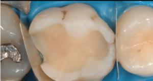 DM_il dentista moderno_restaurativa indiretta compositi