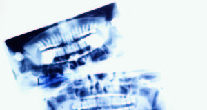 Dentista-moderno-radiologia-odontoiatri-radiologico-radioprotezione