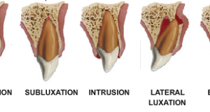Eziologia dei traumi dentali legamento parodontale classificazione