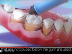trattamento parodontitetrattamento parodontite