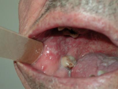 2. Mucosite del cavo orale.