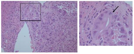 4. Aspetto istologico del prelievo della mucosa orale: nel corion mucoso è presente tessuto neoplastico con aspetti solidi e ghiandolari. Ematossilina eosina, ingrandimento originale 20X. Si noti, a destra, una cellula in mitosi (freccia). Close-up del riquadro di sinistra 60X.