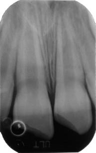 4. Paziente di 7 anni. a. Frattura smalto-dentinale profonda ma non complicata di 1.1 e 2.1 con concomitante concussione. b. La radiografia endorale mostra l'immaturità radicolare.