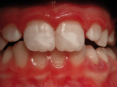 5. a. Preparazione dei margini e decontaminazione della superficie dentinale esposta eseguita con laser Erbium. b. Il restauro finale.