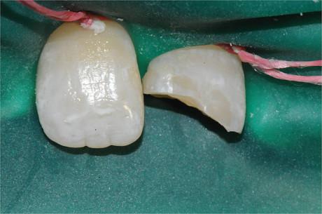 7. a,b. Frattura smalto-dentinale non complicata di 2.1. (Per gentile concessione del professor Romano Grandini)