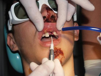 26. Paziente di 15,6 anni. a,b. Grave trauma facciale a seguito di caduta accidentale. Lacerazioni cutanee diffuse con forte edema e tumefazione. (Per gentile concessione del dottor Vulzio Lazzarini)