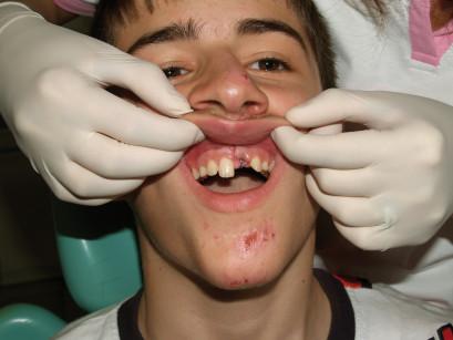 27. a,b. Disinfezione e analgesia con biostimolazione intra- ed extra-orale con laser a diodo.