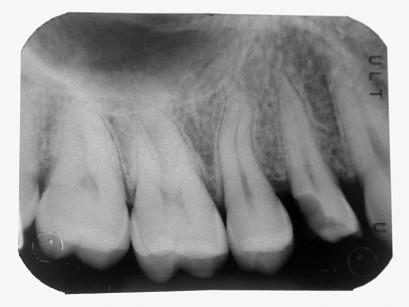 12. Radiografia endorale pre-operatoria: si evidenzia la profondità della lesione, che richiede un trattamento dentinale profondo di decontaminazione e sigillatura dentinale.