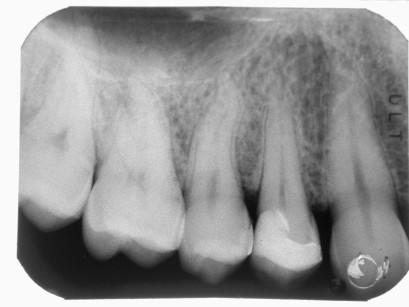 19-21. Impronta, cementazione dell'intarsio e controllo radiografico a un anno.