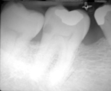 2 e 3. Quadro clinico e radiografico di un secondo molare inferiore prima dell'estrazione del terzo molare e successivamente all'estrazione stessa in previsione di eseguire un restauro OD in Kalore.