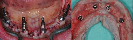 5. Impronta intraoperatoria in gesso.