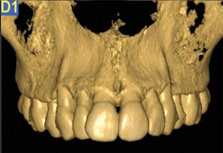 1. Intervento di corticotomia dento-alveolare. Espansione arcata mascellare; Tomografia computerizzata; proiezione frontale.