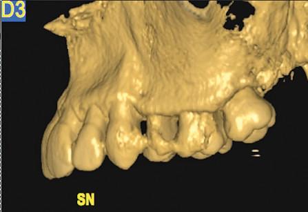 3. Intervento di corticotomia dento-alveolare. Espansione arcata mascellare; Tomografia computerizzata; proiezione sagittale, lato sinistro.