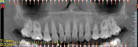 4. Intervento di corticotomia dento-alveolare. Espansione arcata mascellare; Tomografia computerizzata; visione panoramica.