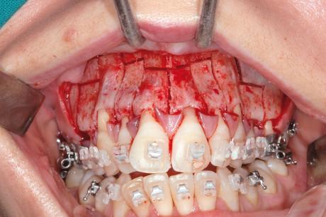 6. Intervento di corticotomia dento-alveolare. Espansione arcata mascellare.