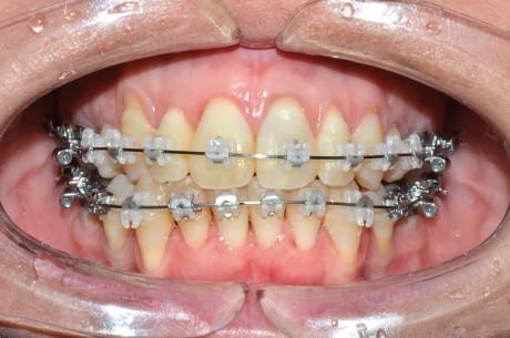 7. Intervento di corticotomia dento-alveolare. Espansione arcata mascellare; controllo.