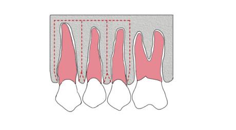 8. Rappresentazione della tecnica di corticotomia dento-alveolare secondo Wilcko.
