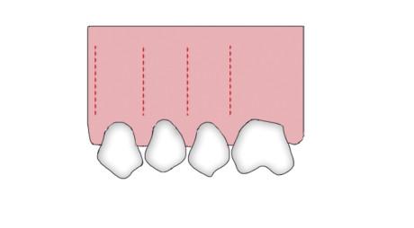 10. Rappresentazione della tecnica di corticotomia minimamente invasiva secondo Dibart.
