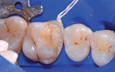 3. Rilocazione del margine cervicale mesiale, build-up e preparazione del dente.