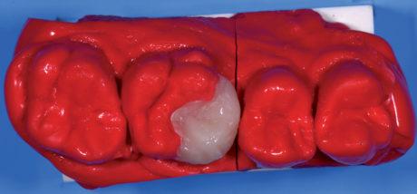 9. Riproduzione della morfologia dentinale con massa A2.