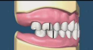DM_il dentista moderno_ I primi passi per la diagnosi in ortodonzia