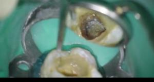 DM_il dentista moderno_C-shaped_canale radicolare_endodonzia
